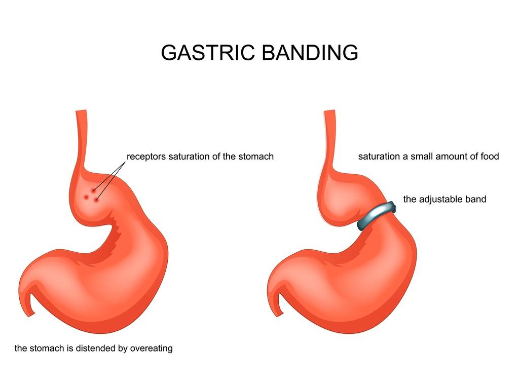cos'è il bendaggio gastrico