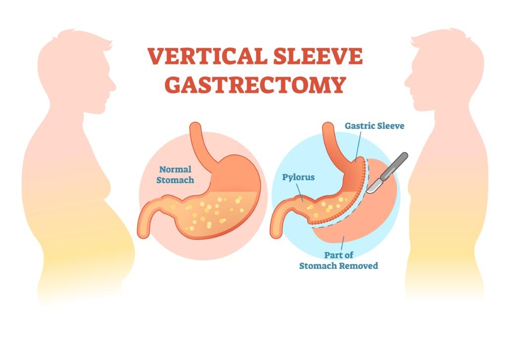 Sleeve-Gastrectomy-Slim-Gastrectomy-Gastrectomia-Verticale
